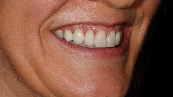 Implante unitario e injerto óseos y de encía simultáneos y estética dental. Odontología Interdisciplinar.