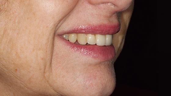 Reposición de un diente anterior. Implantes y estética dental.