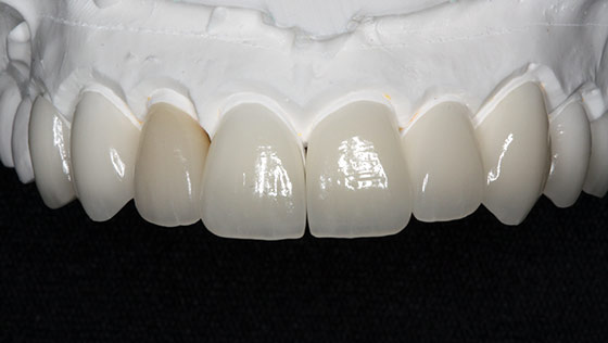 Carillas de porcelana y estética dental.
