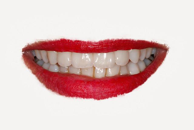 Estética dental y función