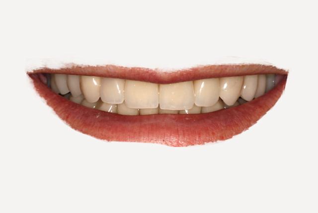 Rehabilitación oral adhesiva